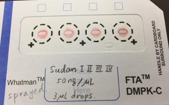 乾燥血液スポット(DBS)カード